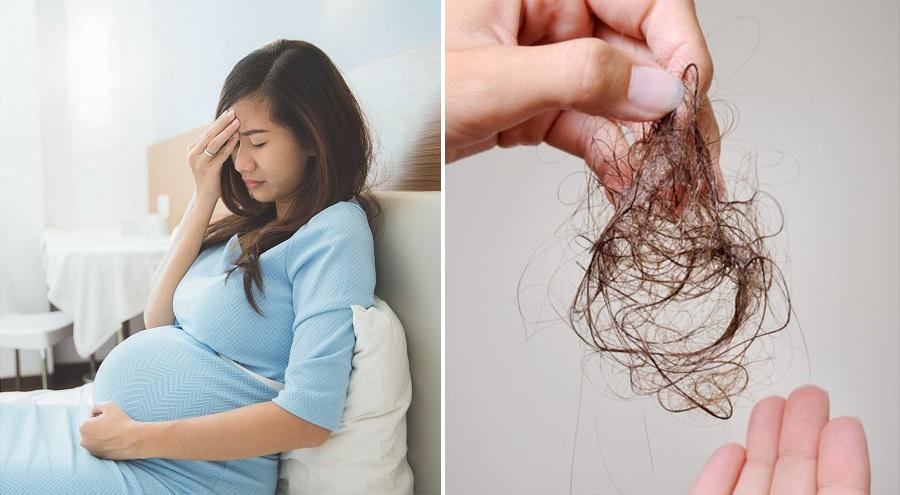 Cách trị rụng tóc cho bà bầu hiệu quả - CÔNG TY TNHH BEAUTY CARE USA